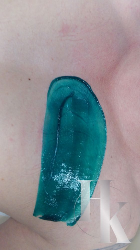 Chest Waxing Example