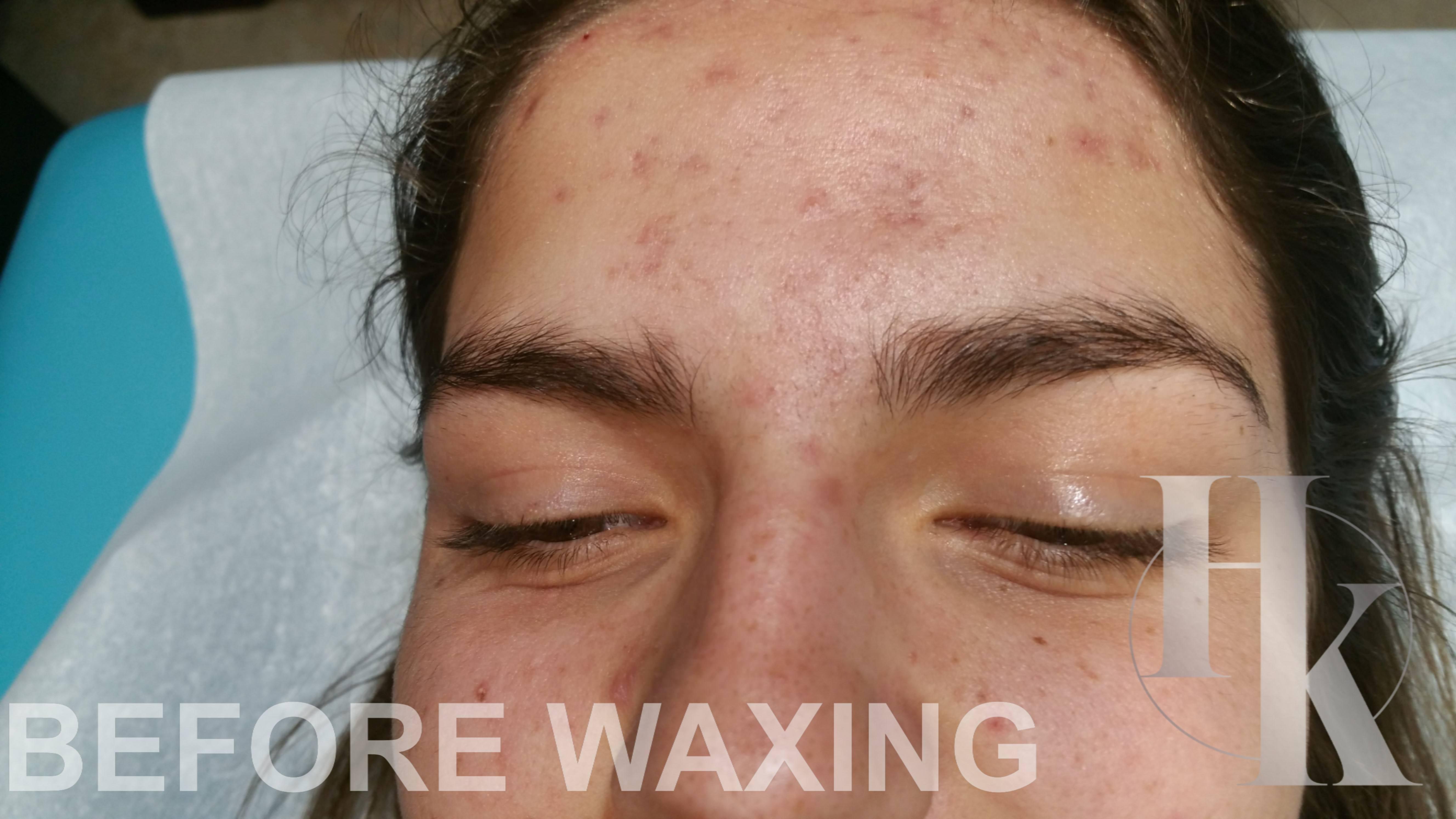 Eyebrow Waxing 78759 (before)