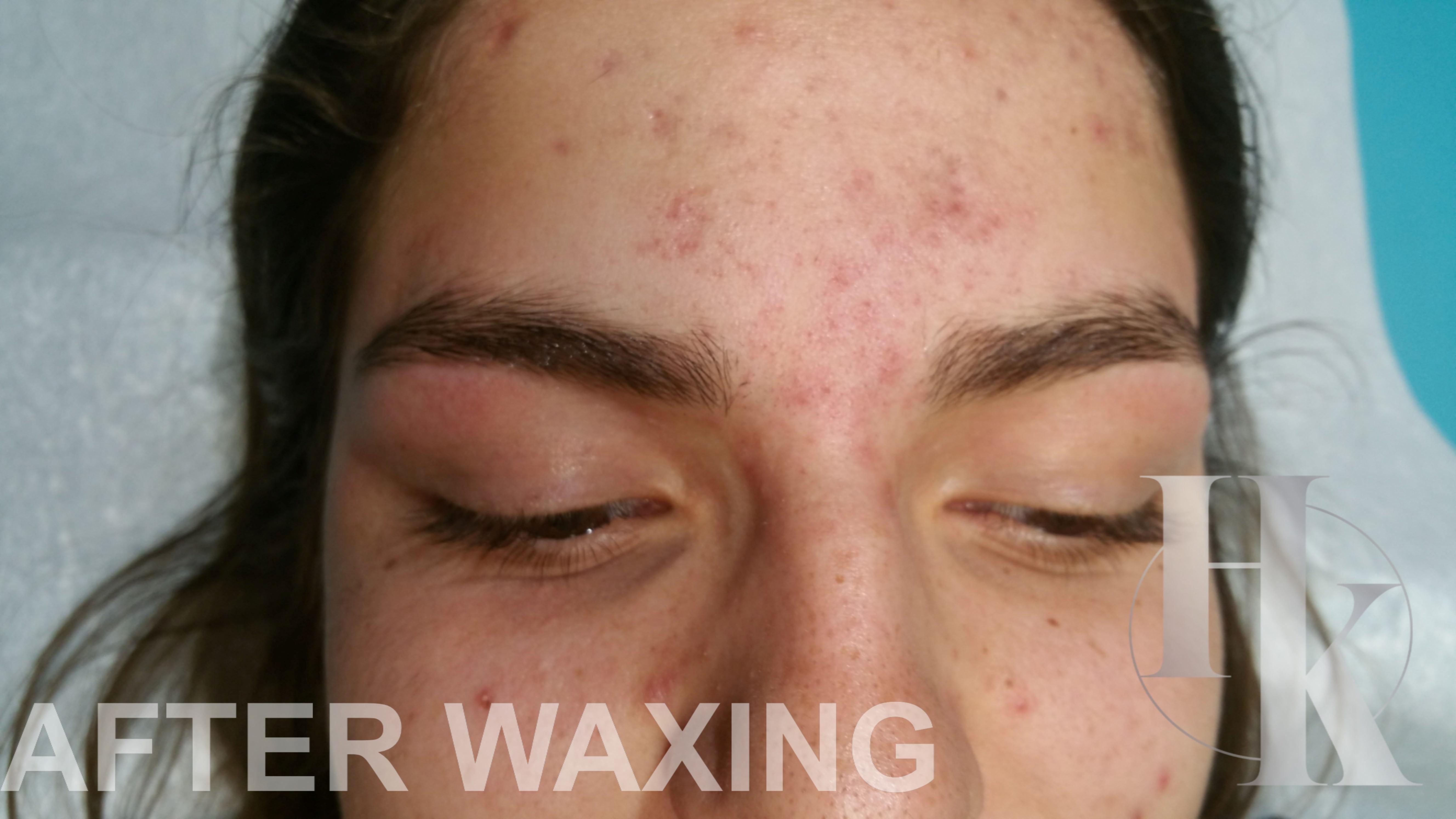 Eyebrow Waxing 78759 (after)