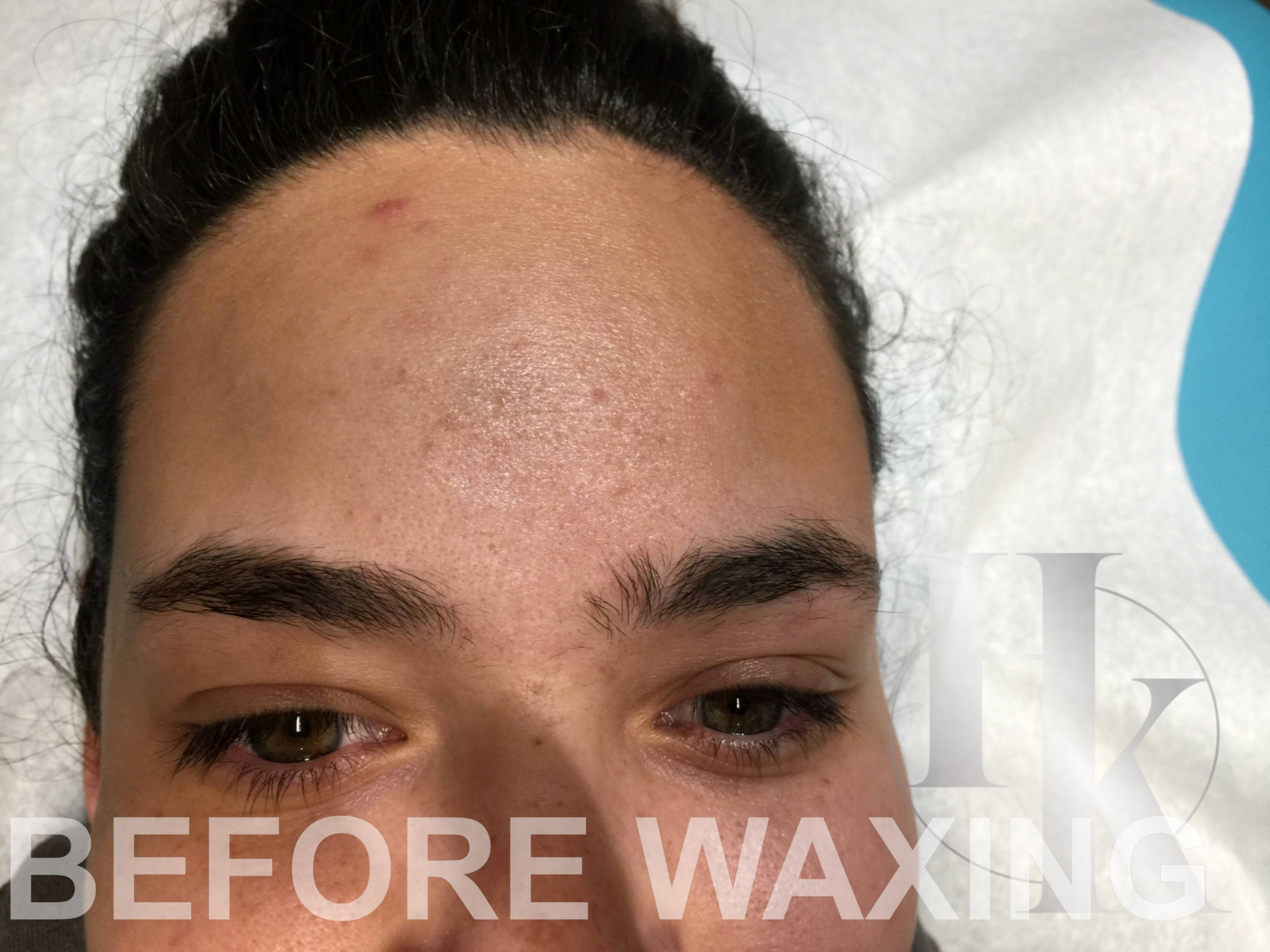 Eyebrow Waxing in North Austin (before)