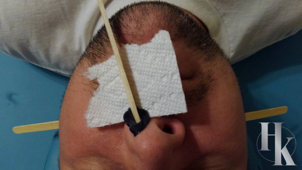 Nose Wax Part Of Full Face