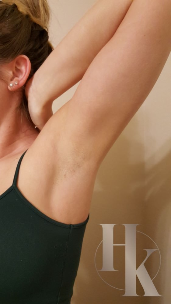 Underarm Waxing After